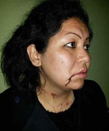 Laila-Haidari-attacked-jan42014