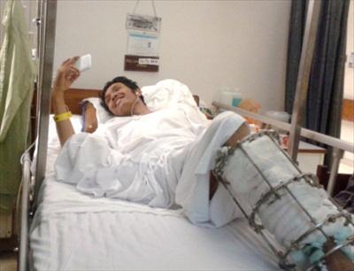 zakir-hussain-lost-both-legs